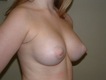 Breast Augmentation 683102