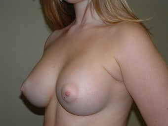 Breast Augmentation after 683102
