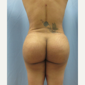 35-44 year old woman treated with Brazilian Butt Lift after 3726050