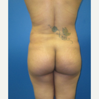 35-44 year old woman treated with Brazilian Butt Lift before 3726050