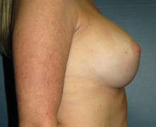 Breast Implants after 3545068