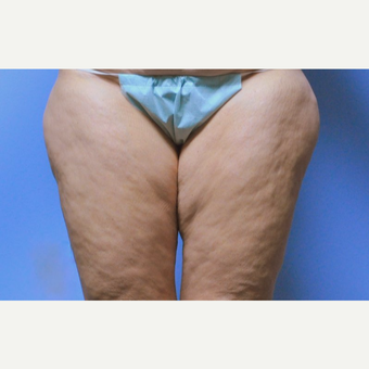 45-54 year old woman treated with Liposuction before 3258369