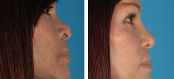 Revision Rhinoplasty before 1208279