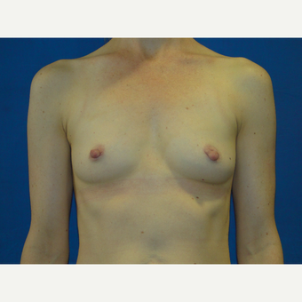 25-34 year old woman treated with Breast Augmentation before 3738782