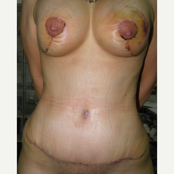 25-34 year old woman treated with Mommy Makeover after 3103804