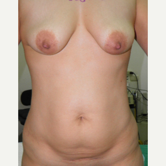 25-34 year old woman treated with Mommy Makeover before 3103804