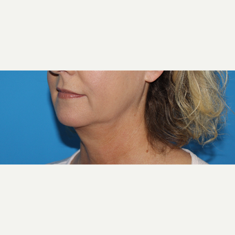45-54 year old woman treated with Chin Liposuction before 3201606