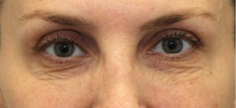 lower blepharoplasty with fat grafting and laser resurfacing before 3166902