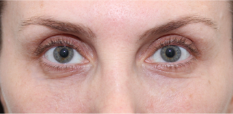 lower blepharoplasty with fat grafting and laser resurfacing after 3166902