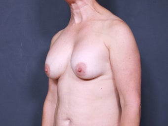 Breast Implant Revision 717489
