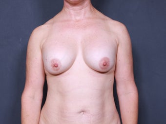 Breast Implant Revision before 717489