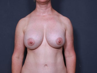 Breast Implant Revision after 717489