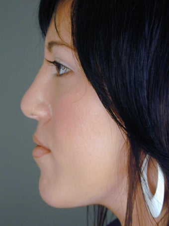 Female Chin Implant after 831842