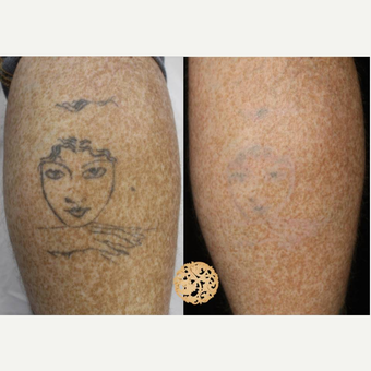 35-44 year old man treated with Tattoo Removal before 3099906