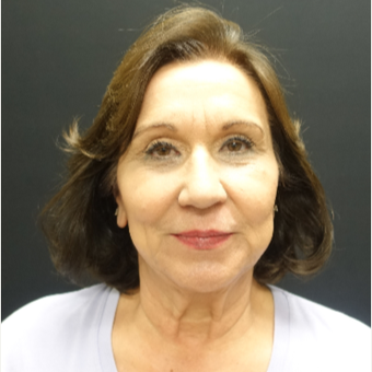 65-74 year old woman treated with Neck Lift before 3244905