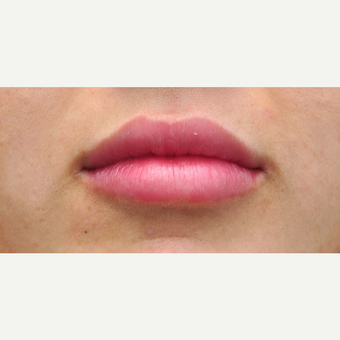 Plumper lips with Juvederm after 3564987