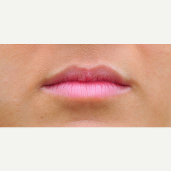 Plumper lips with Juvederm before 3564987