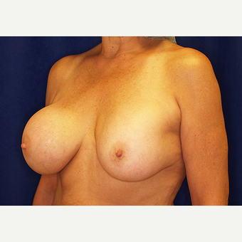 55-64 year old woman treated with Breast Implant Revision before 3061215