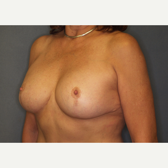 55-64 year old woman treated with Breast Implant Revision after 3061215