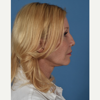 55-64 year old woman treated with Facelift after 3437575
