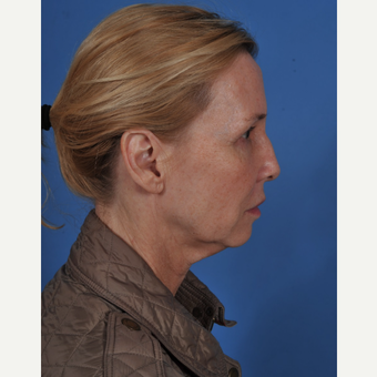 55-64 year old woman treated with Facelift before 3437575