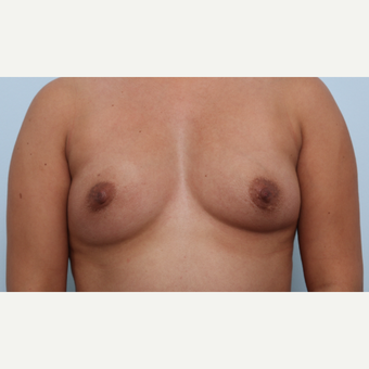 Breast Augmentation before 3345823