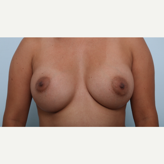 Breast Augmentation after 3345823