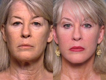 Facelift, Brow Lift, Upper & Lower Eyelid Surgery 337345