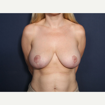 35-44 year old woman treated with Breast Reduction (View 1 of 2) after 3299650