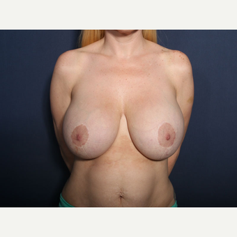 35-44 year old woman treated with Breast Reduction (View 1 of 2) before 3299650