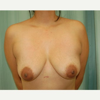 37 year old woman treated with Breast Lift with Implants before 2089862