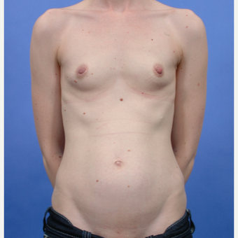 Breast Augmentation (435gm) before 3052381