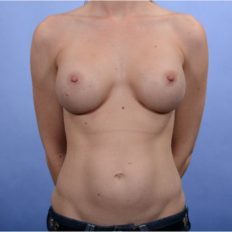 Breast Augmentation (435gm) after 3052381