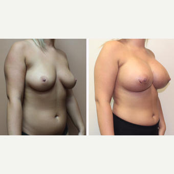 25-34 year old woman treated with Breast Augmentation after 3299872