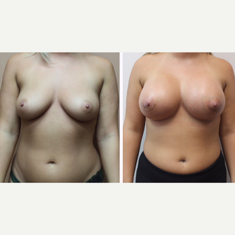 25-34 year old woman treated with Breast Augmentation before 3299872
