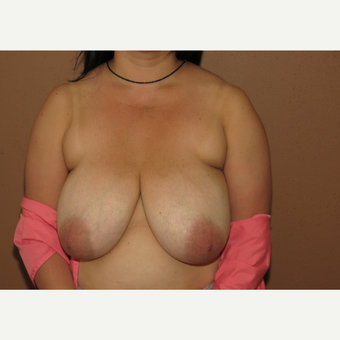 35-44 year old woman treated with Breast Reduction before 3442966