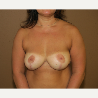35-44 year old woman treated with Breast Reduction after 3442966