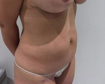 35-44 year old woman treated with Tummy Tuck after 3718300