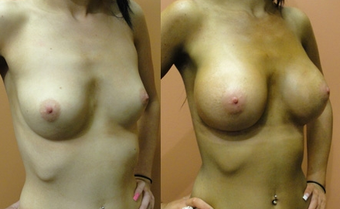 Breast Implants before 974262