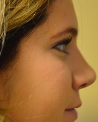 18-24 year old woman treated with Rhinoplasty after 2765387