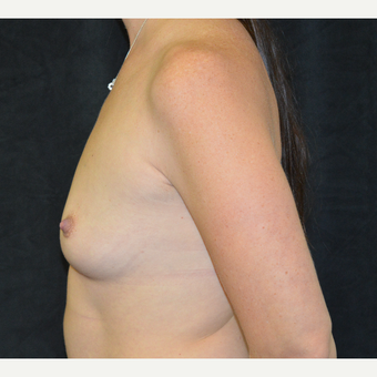 35-44 year old woman treated with Breast Implants before 3181855