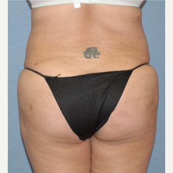 25-34 year old woman treated with Liposculpture after 3265926