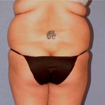 25-34 year old woman treated with Liposculpture before 3265926
