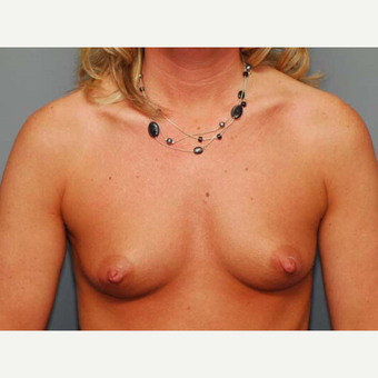 41 y/o Inframammary Sub Muscular Breast Augmentation before 3066026