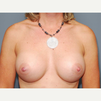 41 y/o Inframammary Sub Muscular Breast Augmentation after 3066026