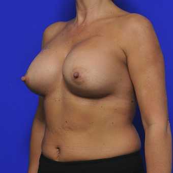 51-year-old woman treated with Breast Augmentation after 3345111