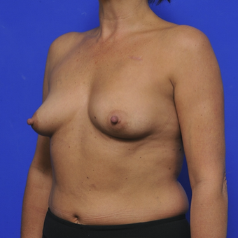 51-year-old woman treated with Breast Augmentation before 3345111