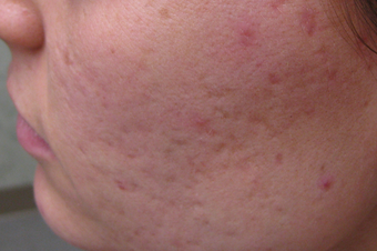 Acne scar revision treatment before 1307659