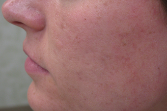 Acne scar revision treatment after 1307659