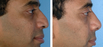 Revision Rhinoplasty before 1208291